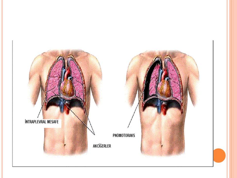 T EDAV İ Gözlem: Tek taraflı, %20 den küçük pnx, asemptomatik, sağlıklı kişi.