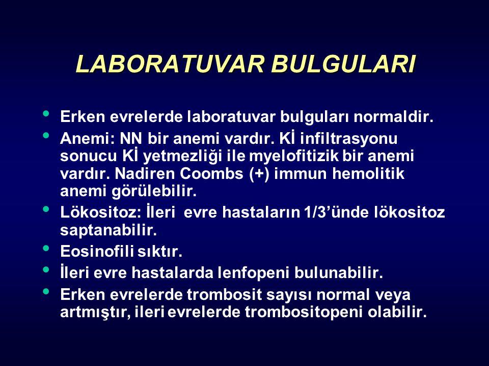 LABORATUVAR BULGULARI Erken evrelerde laboratuvar bulguları normaldir. Anemi: NN bir anemi vardır. Kİ infiltrasyonu sonucu Kİ yetmezliği ile myelofiti