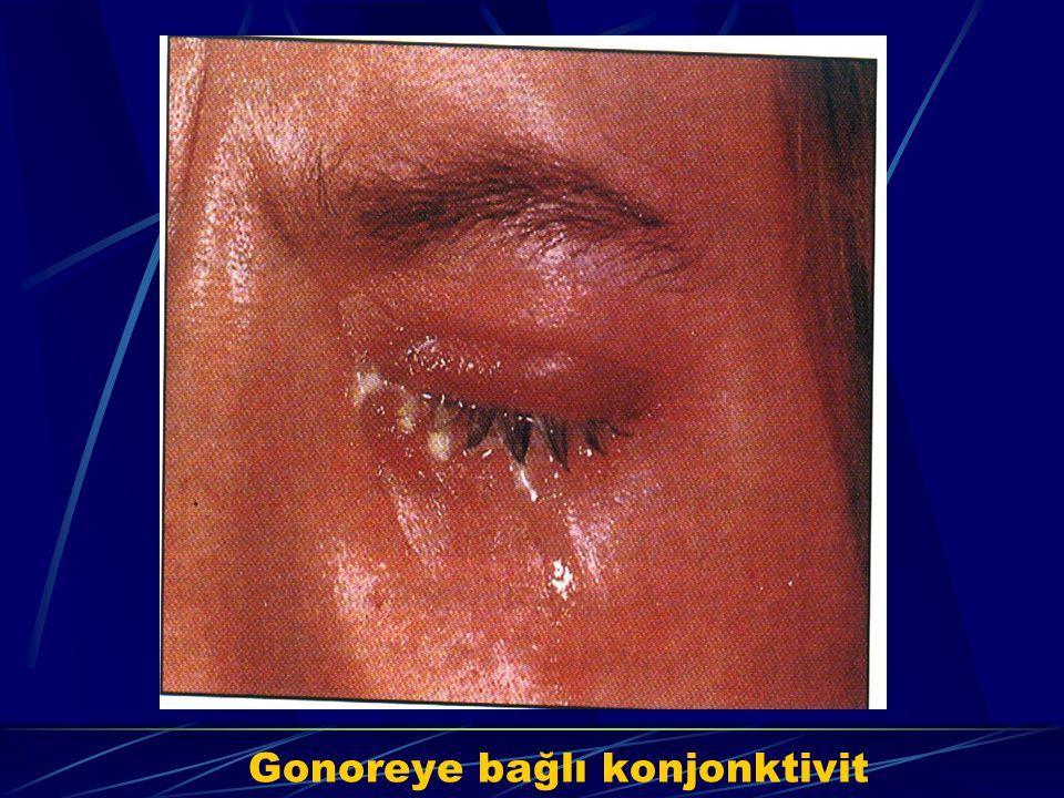 Gonoreye bağlı konjonktivit