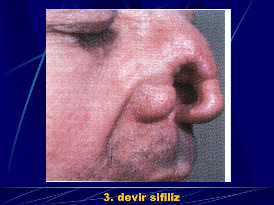 3. devir sifiliz