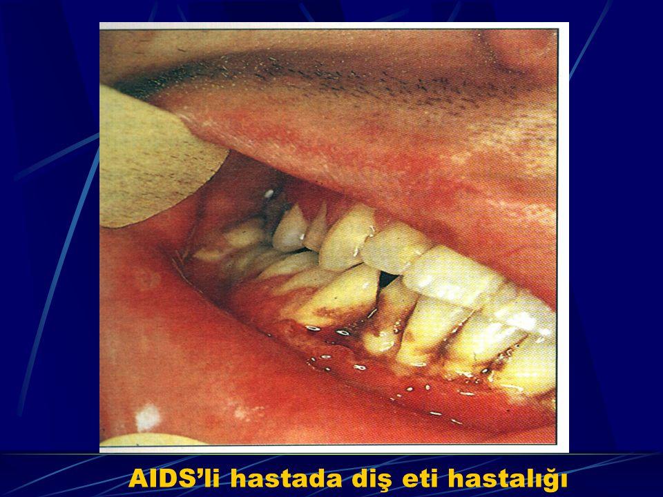 AIDS'li hastada diş eti hastalığı