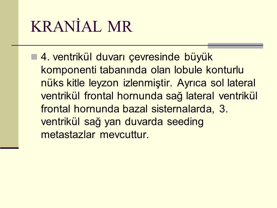 KRANİAL MR 4. ventrikül duvarı çevresinde büyük komponenti tabanında olan lobule konturlu nüks kitle leyzon izlenmiştir. Ayrıca sol lateral ventrikül