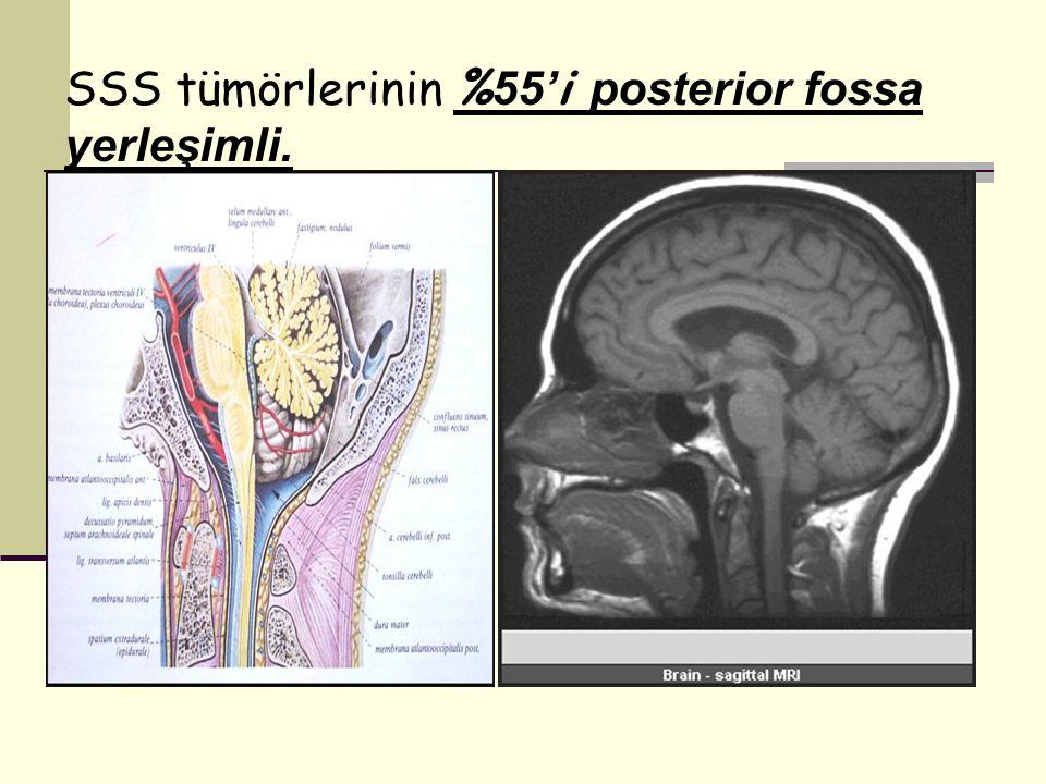 SSS tümörlerinin % 55' i posterior fossa yerleşimli.