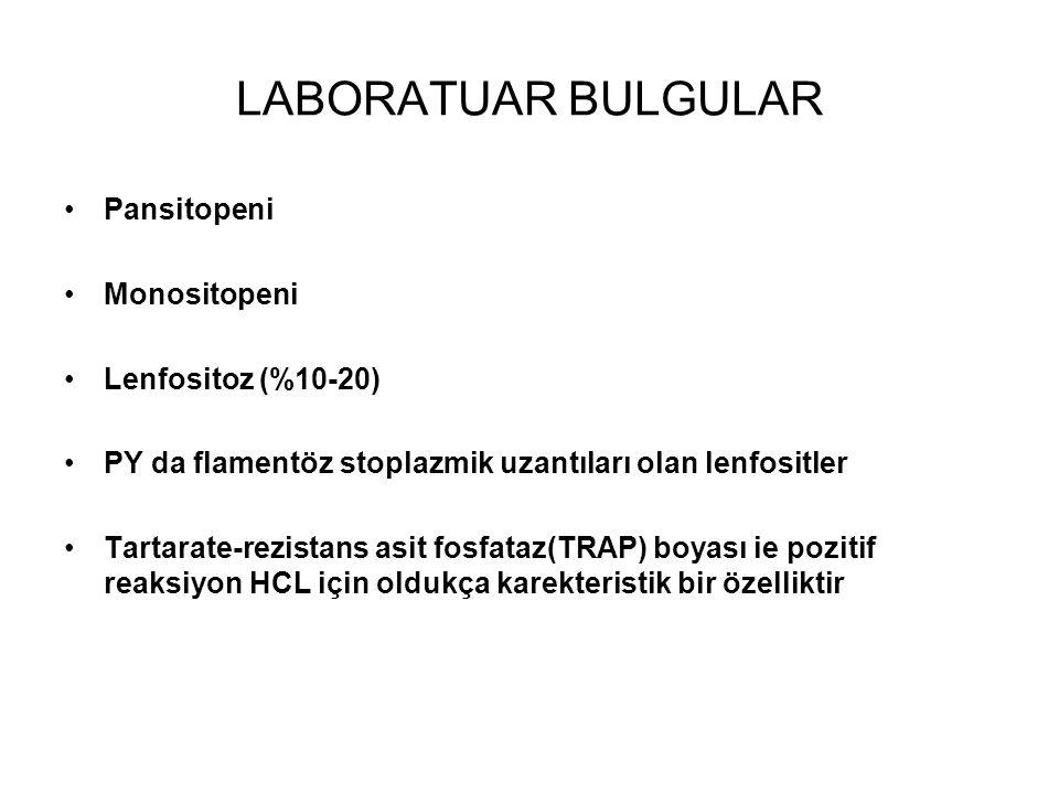 LABORATUAR BULGULAR Pansitopeni Monositopeni Lenfositoz (%10-20) PY da flamentöz stoplazmik uzantıları olan lenfositler Tartarate-rezistans asit fosfa