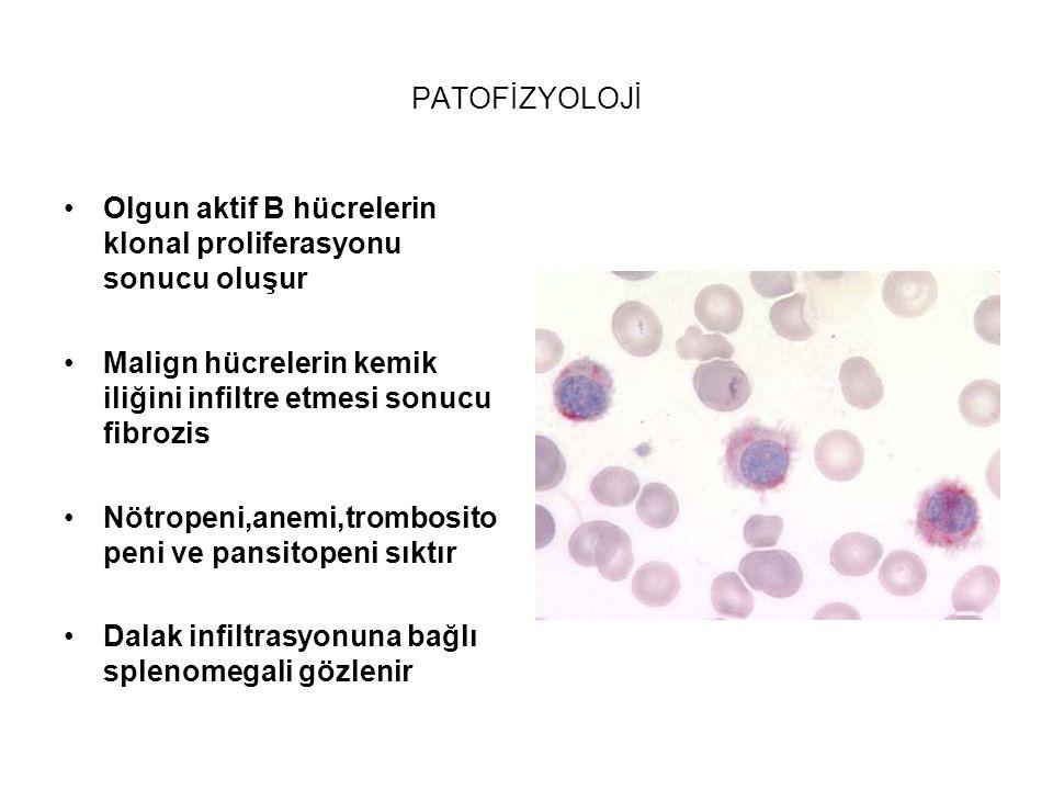 PATOFİZYOLOJİ Olgun aktif B hücrelerin klonal proliferasyonu sonucu oluşur Malign hücrelerin kemik iliğini infiltre etmesi sonucu fibrozis Nötropeni,a