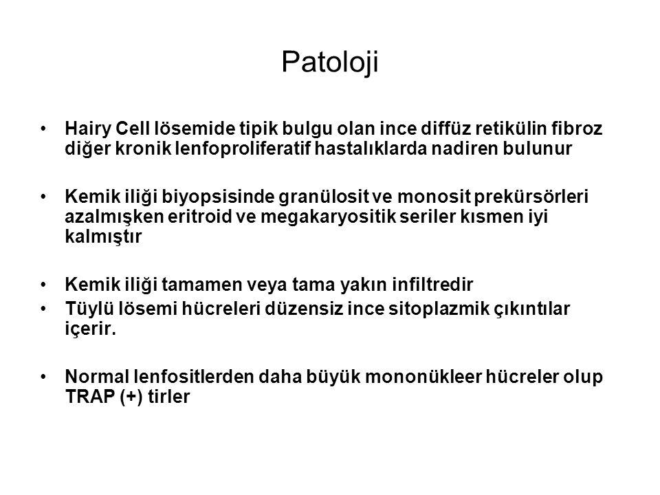 Patoloji Hairy Cell lösemide tipik bulgu olan ince diffüz retikülin fibroz diğer kronik lenfoproliferatif hastalıklarda nadiren bulunur Kemik iliği bi