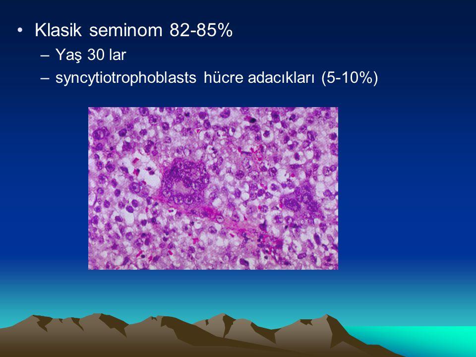 Klasik seminom 82-85% –Yaş 30 lar –syncytiotrophoblasts hücre adacıkları (5-10%)