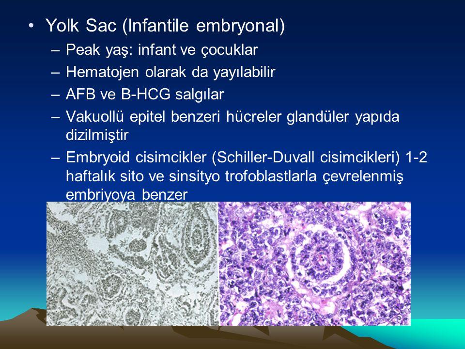 Yolk Sac (Infantile embryonal) –Peak yaş: infant ve çocuklar –Hematojen olarak da yayılabilir –AFB ve B-HCG salgılar –Vakuollü epitel benzeri hücreler