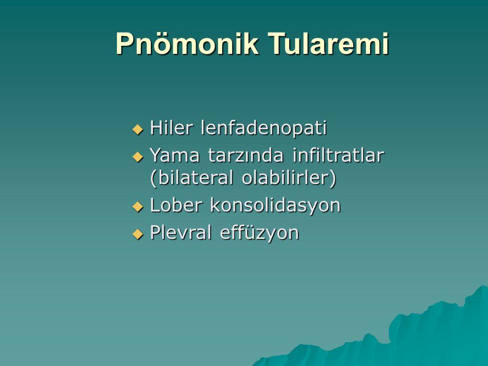 Pnömonik Tularemi  Hiler lenfadenopati  Yama tarzında infiltratlar (bilateral olabilirler)  Lober konsolidasyon  Plevral effüzyon