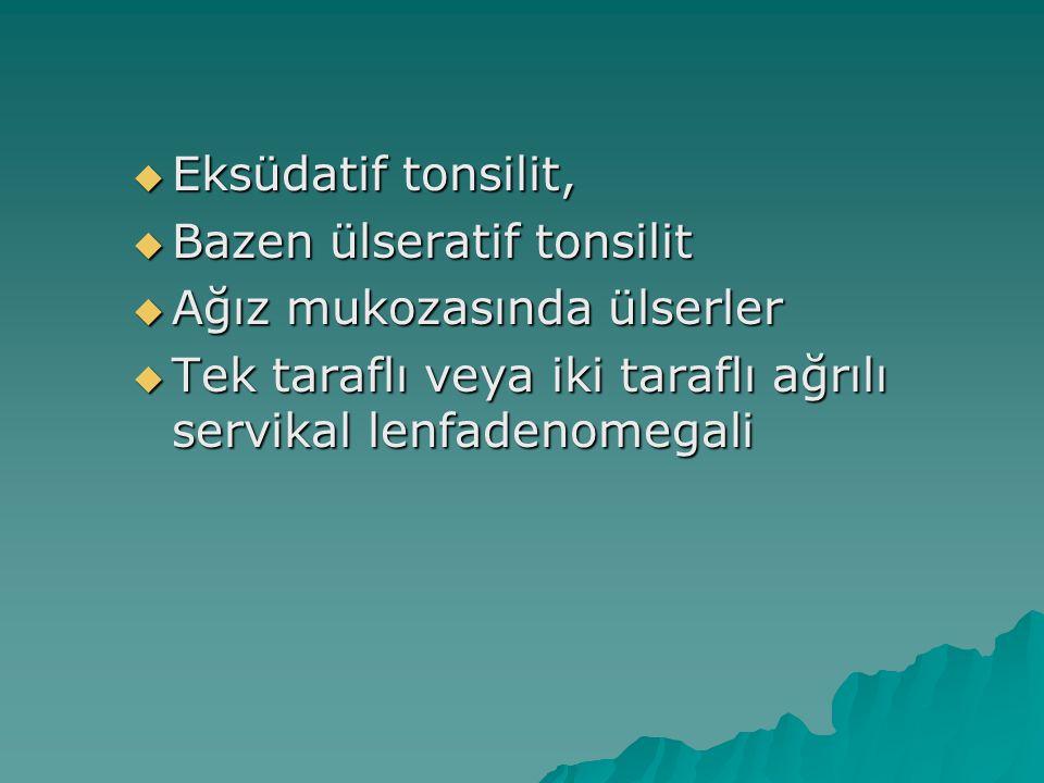  Eksüdatif tonsilit,  Bazen ülseratif tonsilit  Ağız mukozasında ülserler  Tek taraflı veya iki taraflı ağrılı servikal lenfadenomegali