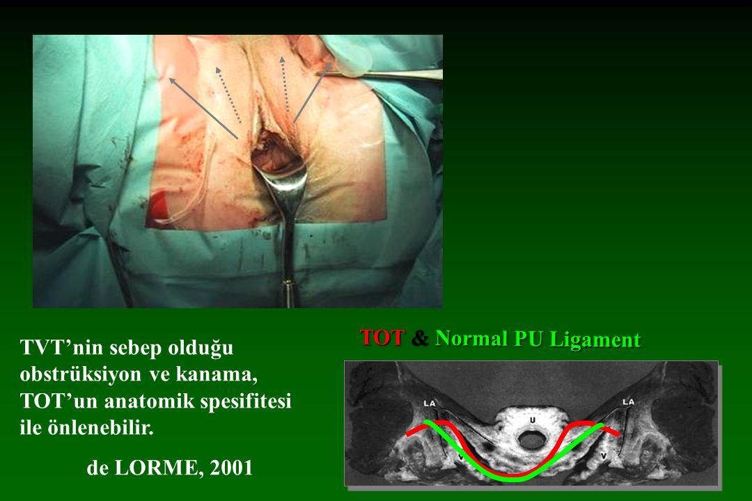 obturator alanı obturator alanı Obturator sinir posterior dal 2.62±2.6cm 4.4cm medial lateral