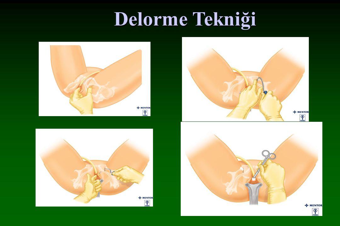 de Leval tekniği TVT-O (Gynecare)