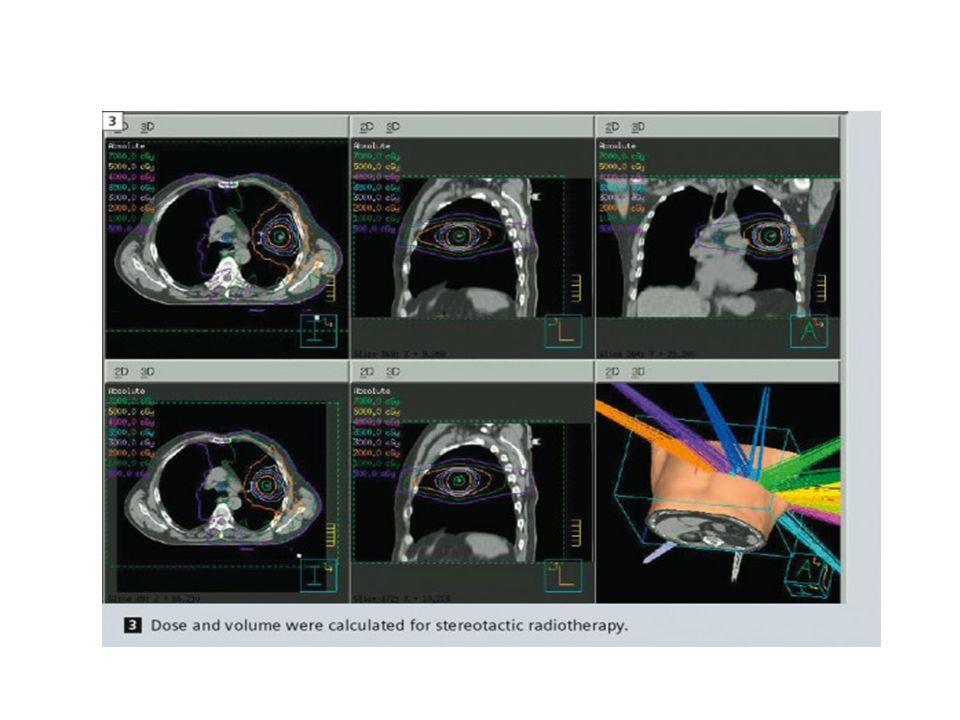 Volumetrik modulasyonlu ark tedavisi cihazı (Vmat)