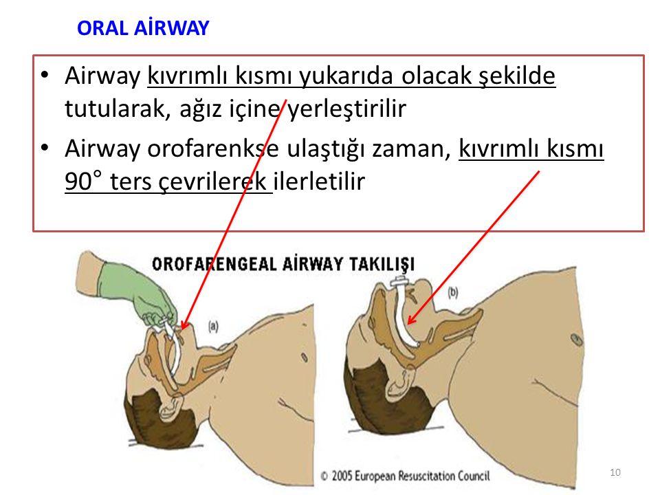 Airway kıvrımlı kısmı yukarıda olacak şekilde tutularak, ağız içine yerleştirilir Airway orofarenkse ulaştığı zaman, kıvrımlı kısmı 90° ters çevrilere