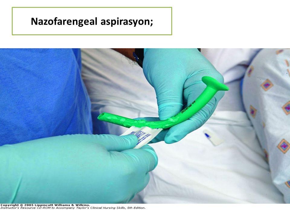 Nazofarengeal aspirasyon; 126