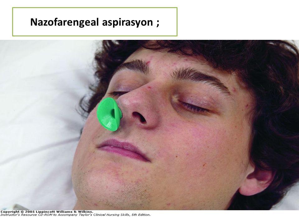 Nazofarengeal aspirasyon ; 128