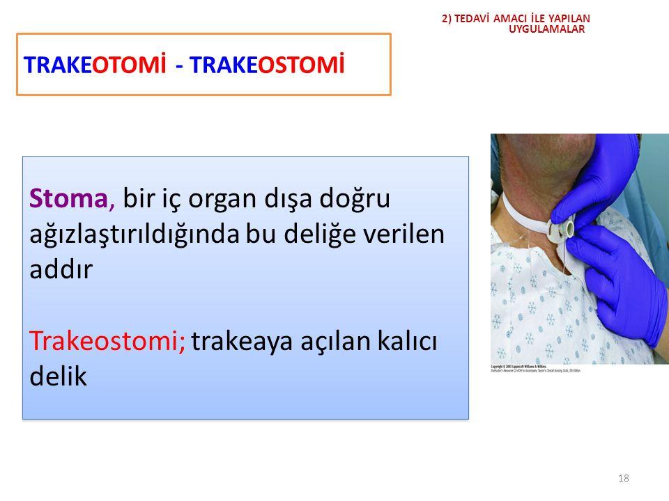 TRAKEOTOMİ - TRAKEOSTOMİ 18 2) TEDAVİ AMACI İLE YAPILAN UYGULAMALAR Stoma, bir iç organ dışa doğru ağızlaştırıldığında bu deliğe verilen addır Trakeos