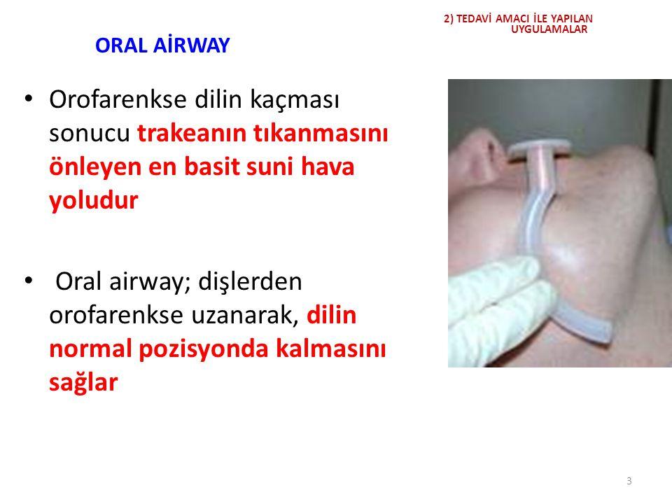 ORAL AİRWAY Orofarenkse dilin kaçması sonucu trakeanın tıkanmasını önleyen en basit suni hava yoludur Oral airway; dişlerden orofarenkse uzanarak, dil