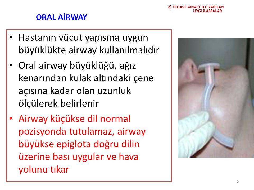 ORAL AİRWAY Hastanın vücut yapısına uygun büyüklükte airway kullanılmalıdır Oral airway büyüklüğü, ağız kenarından kulak altındaki çene açısına kadar
