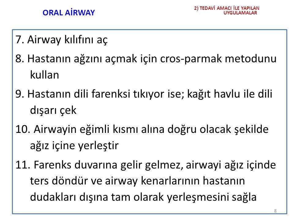 ORAL AİRWAY 7. Airway kılıfını aç 8. Hastanın ağzını açmak için cros-parmak metodunu kullan 9. Hastanın dili farenksi tıkıyor ise; kağıt havlu ile dil