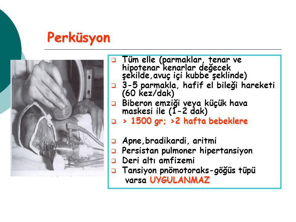 Perküsyon  Tüm elle (parmaklar, tenar ve hipotenar kenarlar değecek şekilde,avuç içi kubbe şeklinde)  3-5 parmakla, hafif el bileği hareketi (60 kez/dak)  Biberon emziği veya küçük hava maskesi ile (1-2 dak)  > 1500 gr; >2 hafta bebeklere  Apne,bradikardi, aritmi  Persistan pulmoner hipertansiyon  Deri altı amfizemi  Tansiyon pnömotoraks-göğüs tüpü UYGULANMAZ varsa UYGULANMAZ
