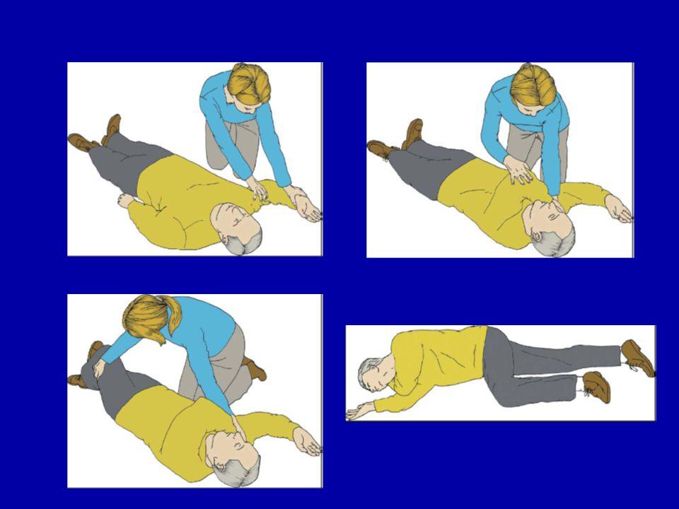 İnatçı VF tedavisinde; Defibrilasyon uygulayın Defibrilasyon uygulayın Göğüs kompresyonlarını uygulayın (ara verilirse koroner perfüzyon basıncında anlamlı düşüşler olur) Göğüs kompresyonlarını uygulayın (ara verilirse koroner perfüzyon basıncında anlamlı düşüşler olur) Geri döndürülebilir nedenleri düşünün (4H ve 4T) ve varsa, düzeltin Geri döndürülebilir nedenleri düşünün (4H ve 4T) ve varsa, düzeltin Trakeal intübasyon 30 s den kısa sürede, kompresyonlara ara vermeden ve bir an tüp yerleştirilirken durmak üzere sadece eğitilmiş eleman tarafından yapılmalıdır Trakeal intübasyon 30 s den kısa sürede, kompresyonlara ara vermeden ve bir an tüp yerleştirilirken durmak üzere sadece eğitilmiş eleman tarafından yapılmalıdır 4H: hipoksi, hipovolemi, hipotermi, hipo/hiperkalemi, 4T: tansiyon pnömotoraks, kardiyak tamponat, toksinler, tromboemboli 4H: hipoksi, hipovolemi, hipotermi, hipo/hiperkalemi, 4T: tansiyon pnömotoraks, kardiyak tamponat, toksinler, tromboemboli
