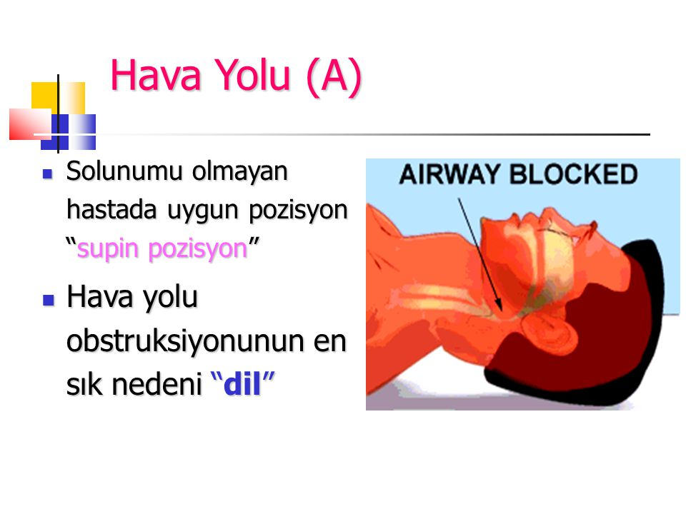 Hava Yolu (A) Solunumu olmayan hastada uygun pozisyon supin pozisyon Solunumu olmayan hastada uygun pozisyon supin pozisyon Hava yolu obstruksiyonunun en sık nedeni dil Hava yolu obstruksiyonunun en sık nedeni dil