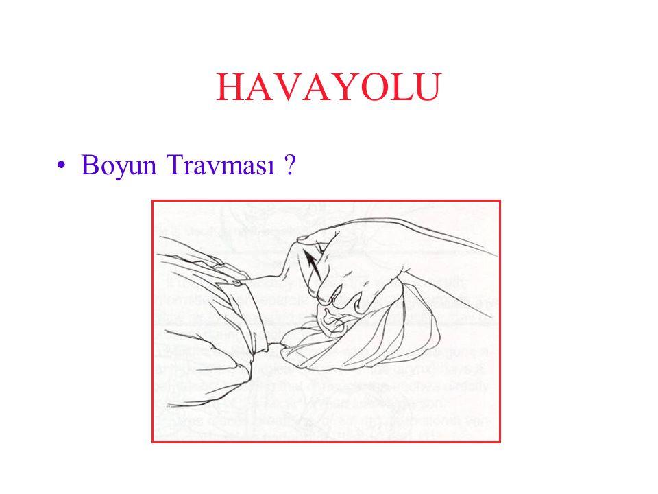 HAVAYOLU Boyun travmasından şüpheniz yoksa