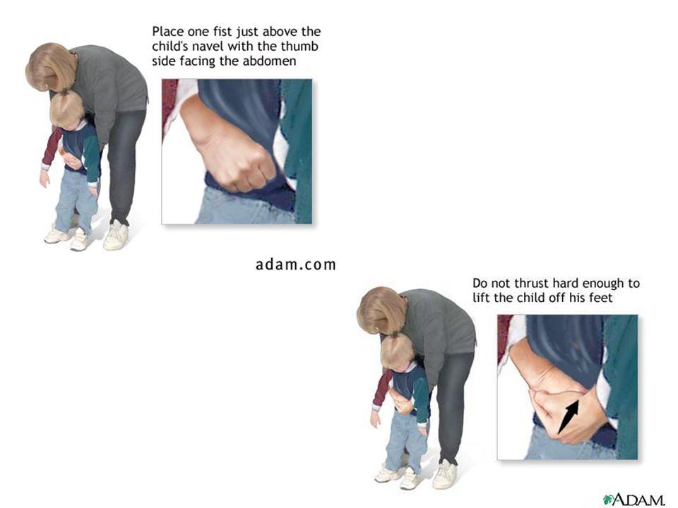 Havayolu tıkanıklığı: Bilinci açık bebek Baş aşağıda 5 adet sırta darbe 5 adet göğüse darbe 5 kez tekrar