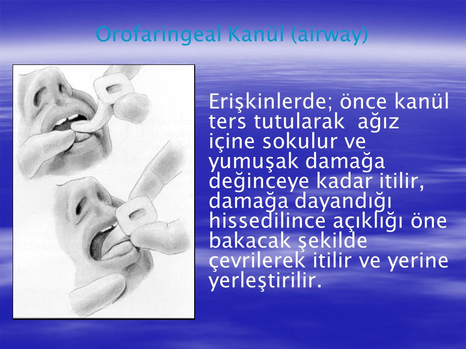 Erişkinlerde; önce kanül ters tutularak ağız içine sokulur ve yumuşak damağa değinceye kadar itilir, damağa dayandığı hissedilince açıklığı öne bakaca