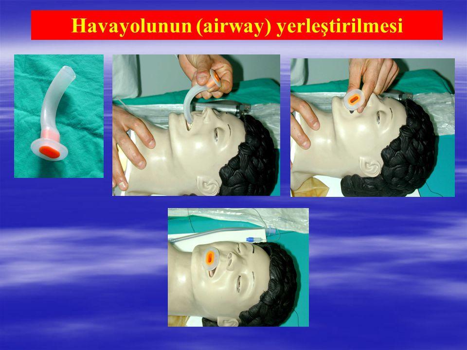 Havayolunun (airway) yerleştirilmesi