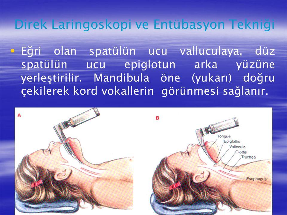   Eğri olan spatülün ucu valluculaya, düz spatülün ucu epiglotun arka yüzüne yerleştirilir. Mandibula öne (yukarı) doğru çekilerek kord vokallerin g