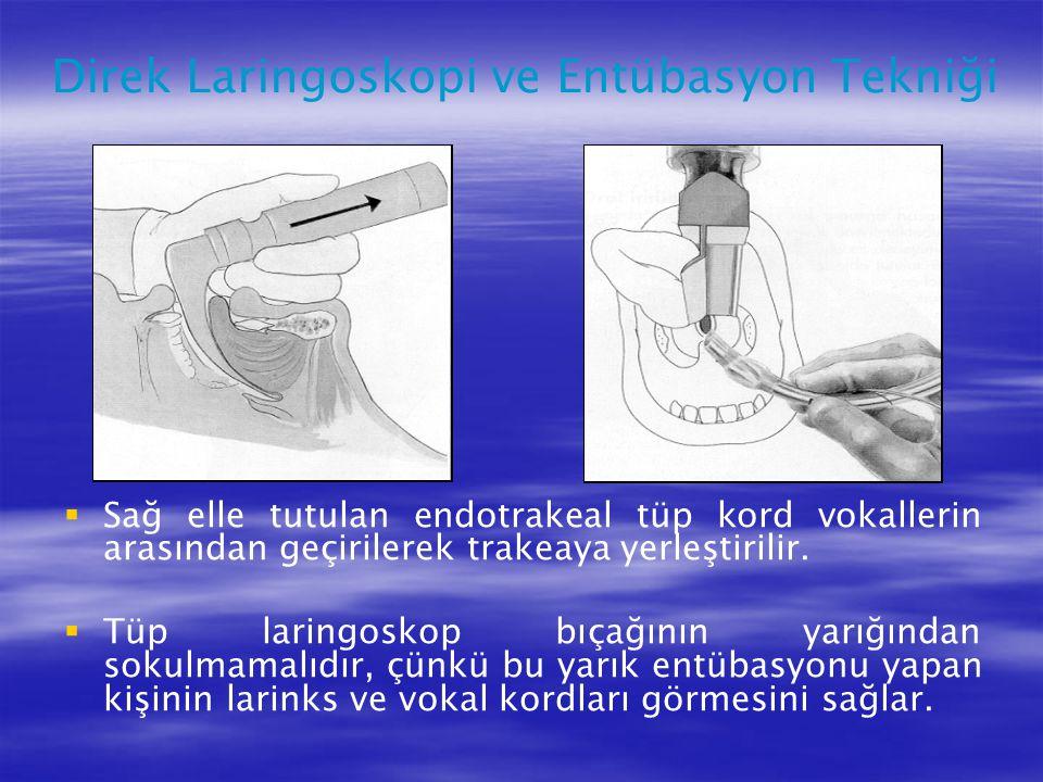  Sağ elle tutulan endotrakeal tüp kord vokallerin arasından geçirilerek trakeaya yerleştirilir.  Tüp laringoskop bıçağının yarığından sokulmamalıdır