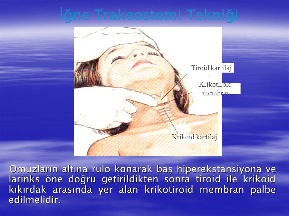 Tiroid kartilaj Krikotiroid membran Krikoid kartilaj Omuzların altına rulo konarak baş hiperekstansiyona ve larinks öne doğru getirildikten sonra tiro