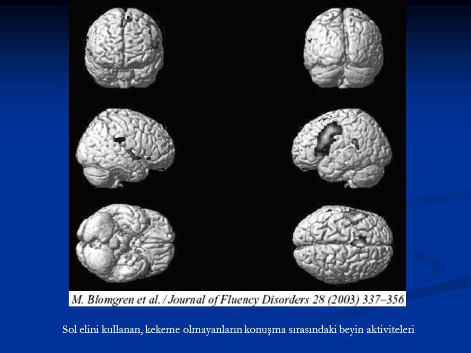 Sol elini kullanan, kekeme olmayanların konuşma sırasındaki beyin aktiviteleri