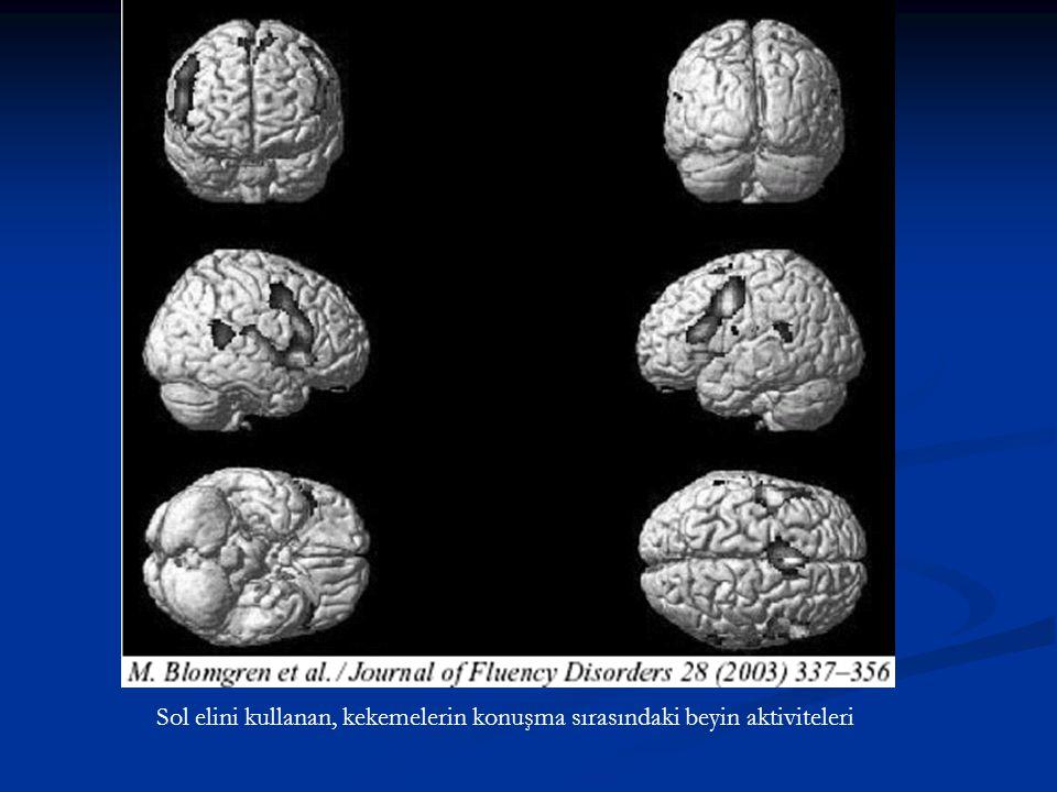 Yukarıdaki çalışmada; konuşmacılara kendilerini tanıtma ödevi verilmiş ve konuşma sırasındaki beyin aktiviteleri ölçülmüştür.