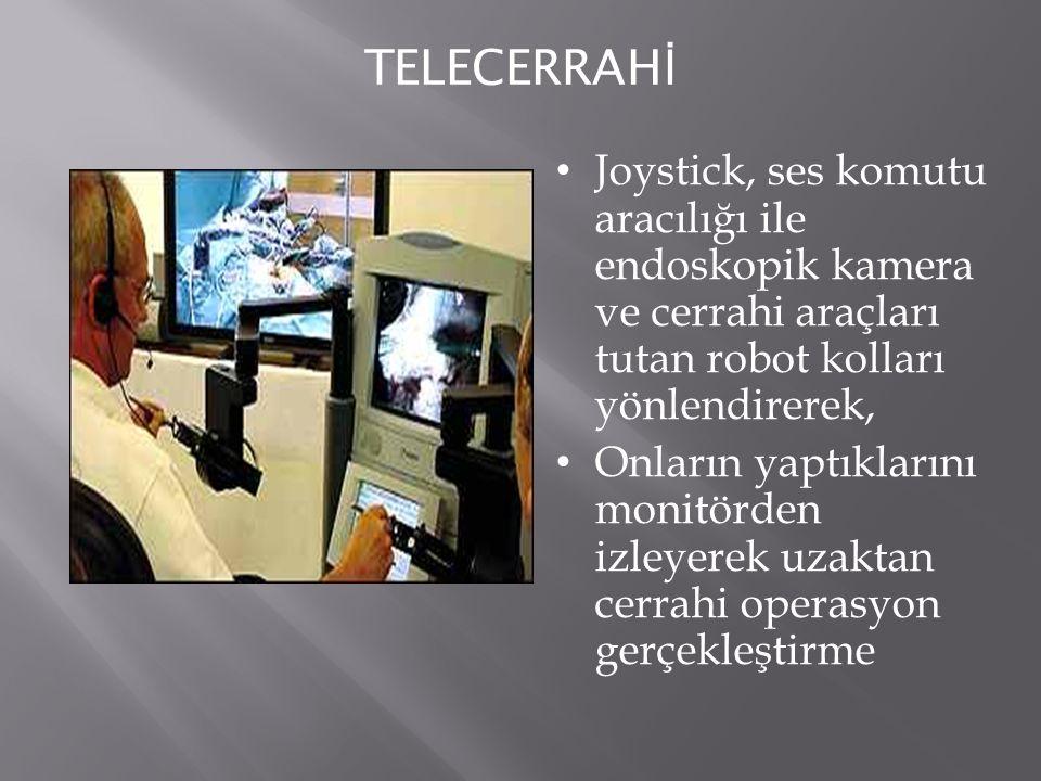 TELECERRAH İ Joystick, ses komutu aracılığı ile endoskopik kamera ve cerrahi araçları tutan robot kolları yönlendirerek, Onların yaptıklarını monitörd