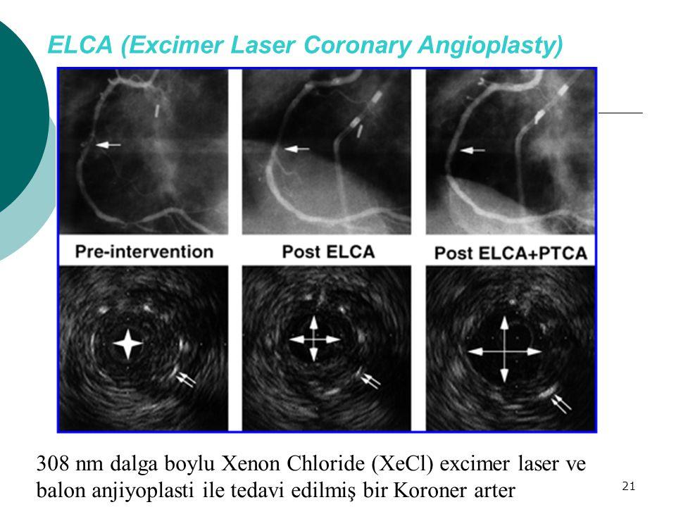 21 ELCA (Excimer Laser Coronary Angioplasty) 308 nm dalga boylu Xenon Chloride (XeCl) excimer laser ve balon anjiyoplasti ile tedavi edilmiş bir Koron