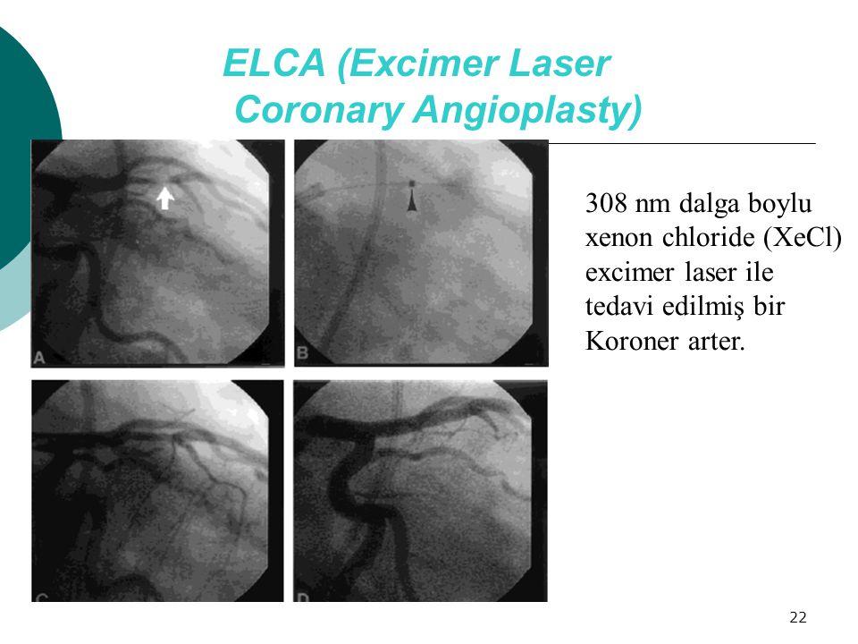 22 ELCA (Excimer Laser Coronary Angioplasty) 308 nm dalga boylu xenon chloride (XeCl) excimer laser ile tedavi edilmiş bir Koroner arter.