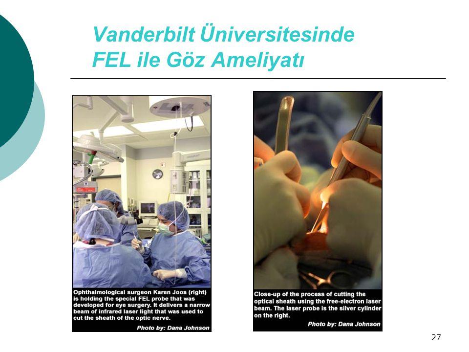 27 Vanderbilt Üniversitesinde FEL ile Göz Ameliyatı