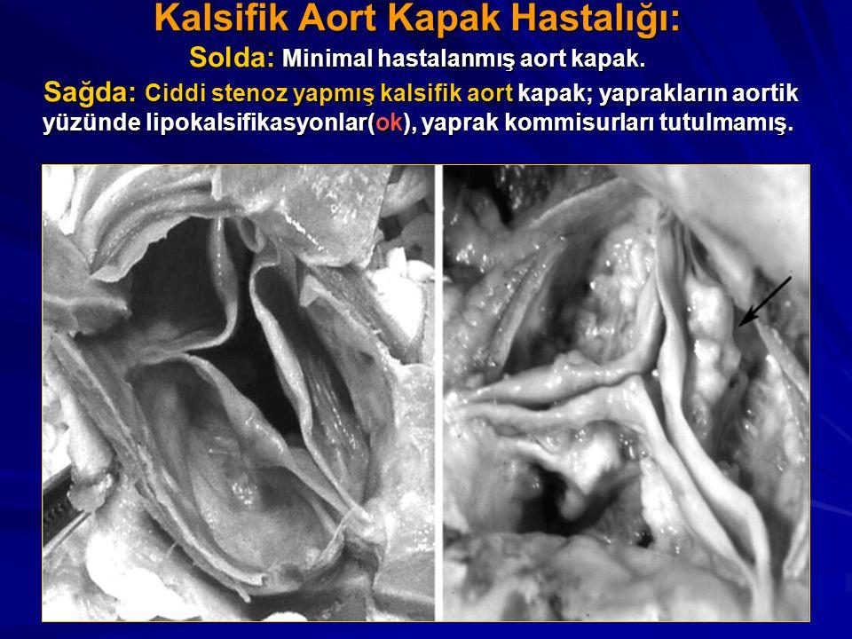 Kalsifik Aort Kapak Hastalığı: Solda: Minimal hastalanmış aort kapak. Sağda: Ciddi stenoz yapmış kalsifik aort kapak; yaprakların aortik yüzünde lipok