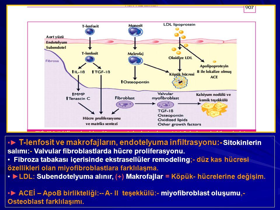 ► T-lenfosit ve makrofajların, endotelyuma infiltrasyonu:- Sitokinlerin salımı:- Valvular fibroblastlarda hücre proliferasyonu. Fibroza tabakası içeri