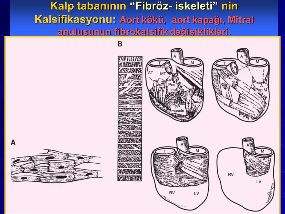 """Kalp tabanının """"Fibröz- iskeleti"""" nin Kalsifikasyonu: Aort kökü, aort kapağı, Mitral anulusunun fibrokalsifik değişiklikleri."""
