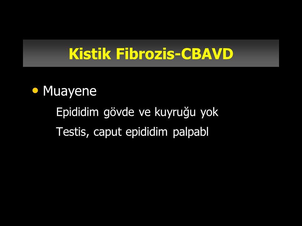 Kistik Fibrozis-CBAVD Muayene –Epididim gövde ve kuyruğu yok –Testis, caput epididim palpabl