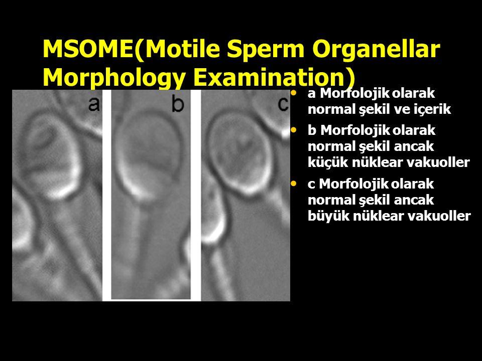 MSOME(Motile Sperm Organellar Morphology Examination) a Morfolojik olarak normal şekil ve içerik b Morfolojik olarak normal şekil ancak küçük nüklear