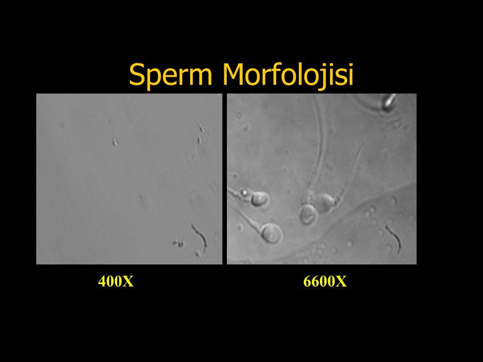 Sperm Morfolojisi 400X6600X