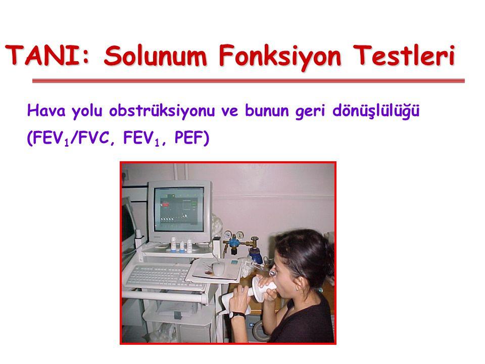 TANI: Solunum Fonksiyon Testleri Hava yolu obstrüksiyonu ve bunun geri dönüşlülüğü (FEV 1 /FVC, FEV 1, PEF)