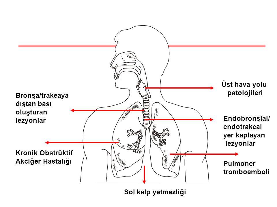 Astım Mast hücreleri, eozinofiller ve T lenfositler basta olmak üzere değişik hücrelerin rol oynadığı hava yollarını kronik inflamatuar bir hastalığıdır.