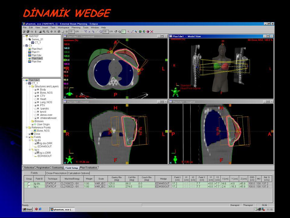 Meme radyoterapisini takiben karşı memedeki doz dağılımı inhomojendir.