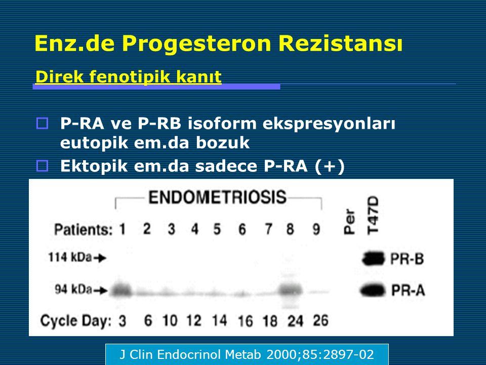 Enz.de Progesteron Rezistansı Direk fenotipik kanıt  P-RA ve P-RB isoform ekspresyonları eutopik em.da bozuk  Ektopik em.da sadece P-RA (+) J Clin Endocrinol Metab 2000;85:2897-02